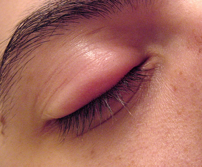 eye stye pictures