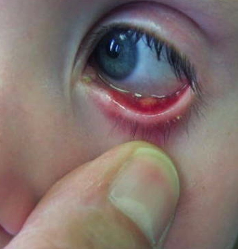 Eye Stye - Pictures, Treatment, Symptoms, Causes, Contagious