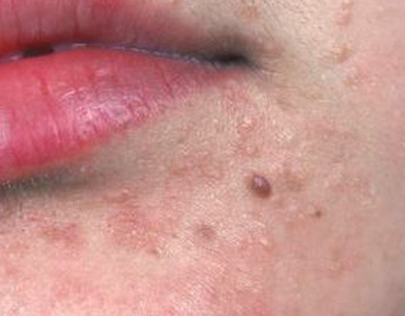 flat warts on face pictures