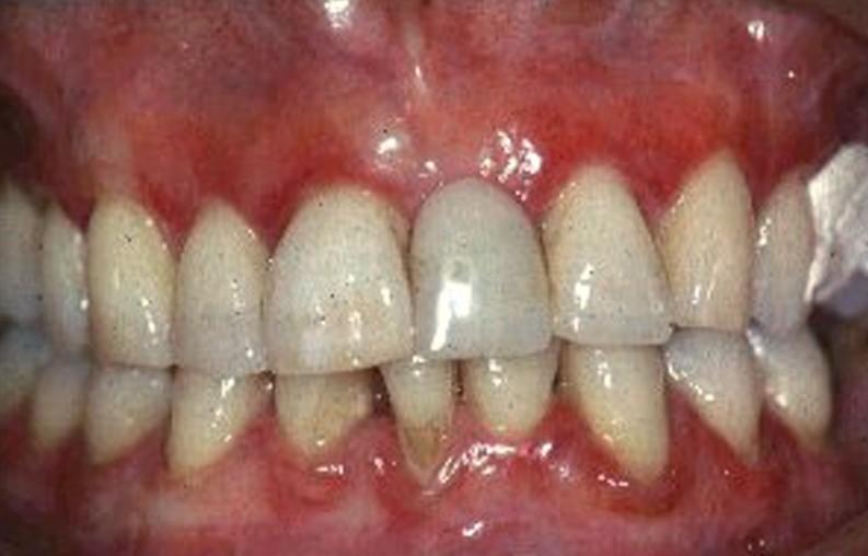 gingivitis pictures
