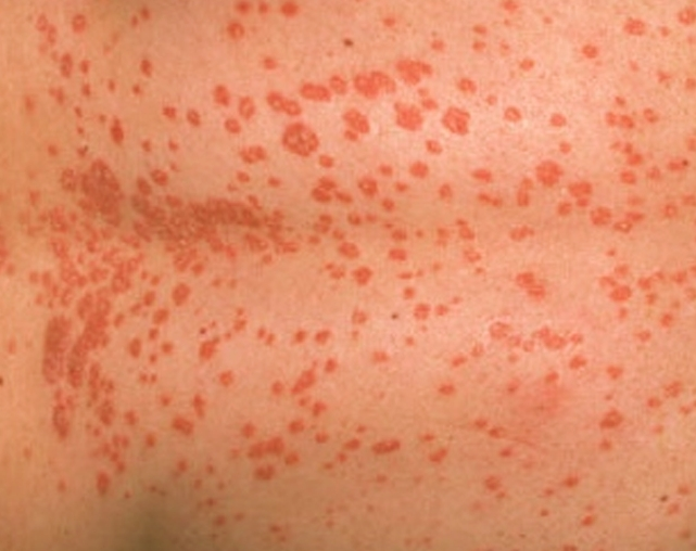 Ringworm Symptoms, Treatment, Causes - MedicineNet