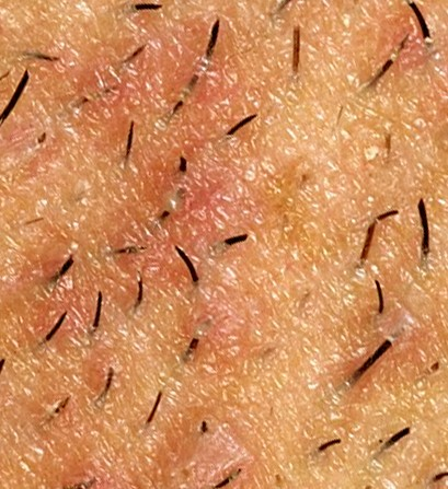 infected ingrown hair pictures
