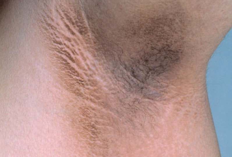 Picture of Acanthosis Nigricans - WebMD