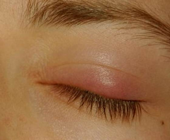 Eyelid Inflammation (Blepharitis) - Healthline