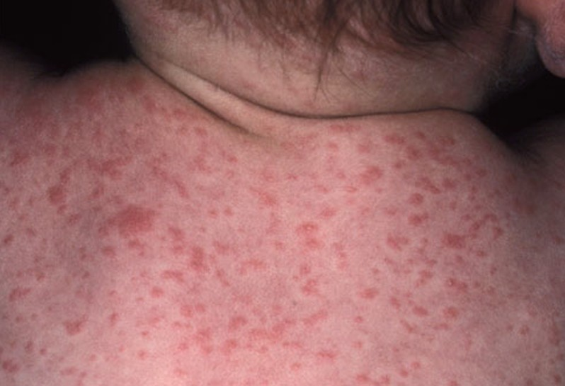 Roseola Rash - Pictures, Symptoms, Causes, Treatment, Home ...