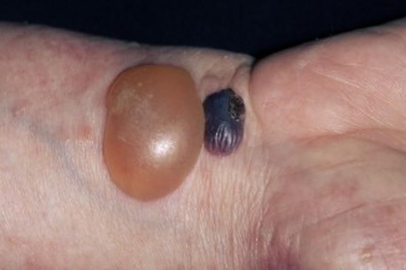 bullous pemphigoid pictures 3