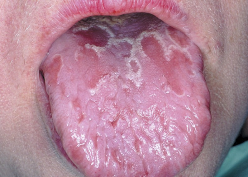 Geographic Tongue Pictures, Symptoms, Treatment, Causes