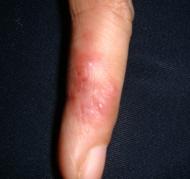 Herpes on Finger with Pictures | Herpes Land