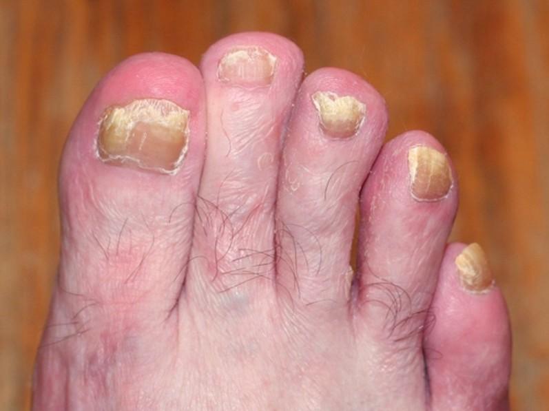 toenail fungus pictures 2