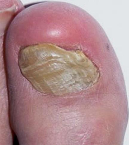 toenail fungus pictures 3