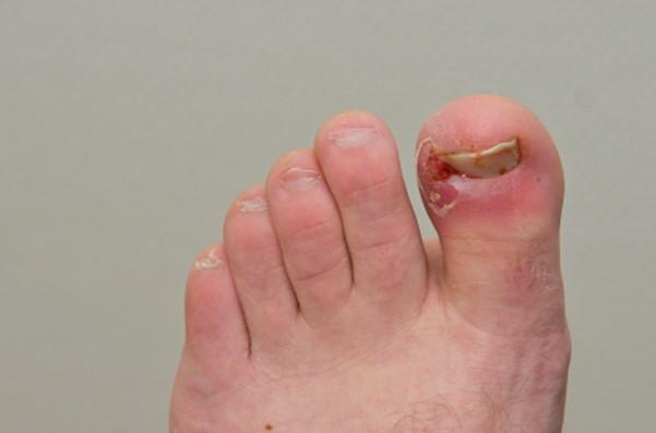 toenail fungus pictures