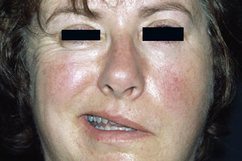 bell's palsy pictures