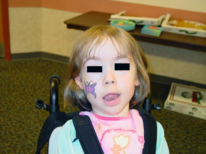 canavan disease pictures