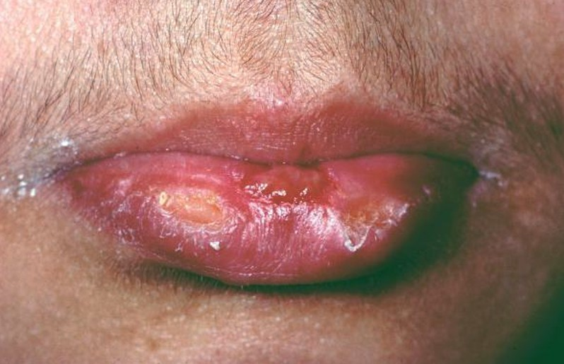 cold sores pictures 3