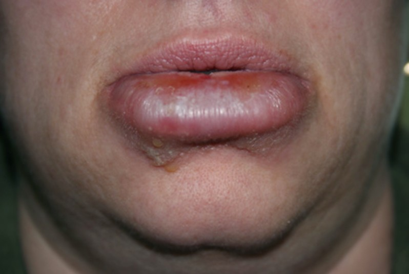 Cold Sores - Pictures, Symptoms, Treatment, Causes, Home ...