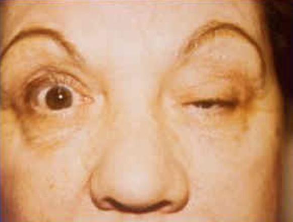 myasthenia gravis picture