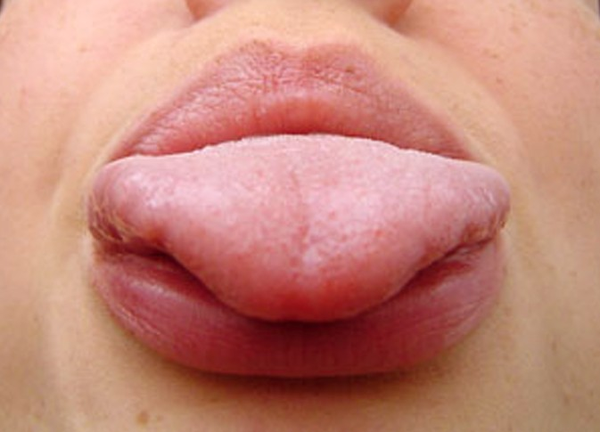 The gallery for --> Herpes On Tongue