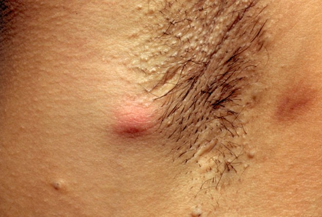 hidradenitis suppurativa picture