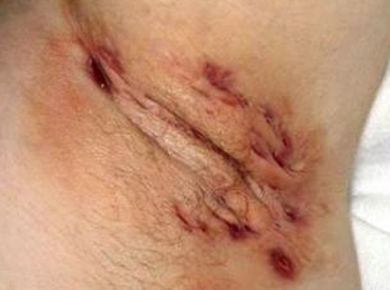 hidradenitis suppurativa photo