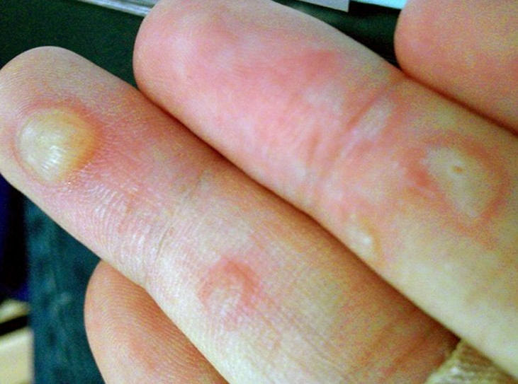 blisters on hands pictures 4