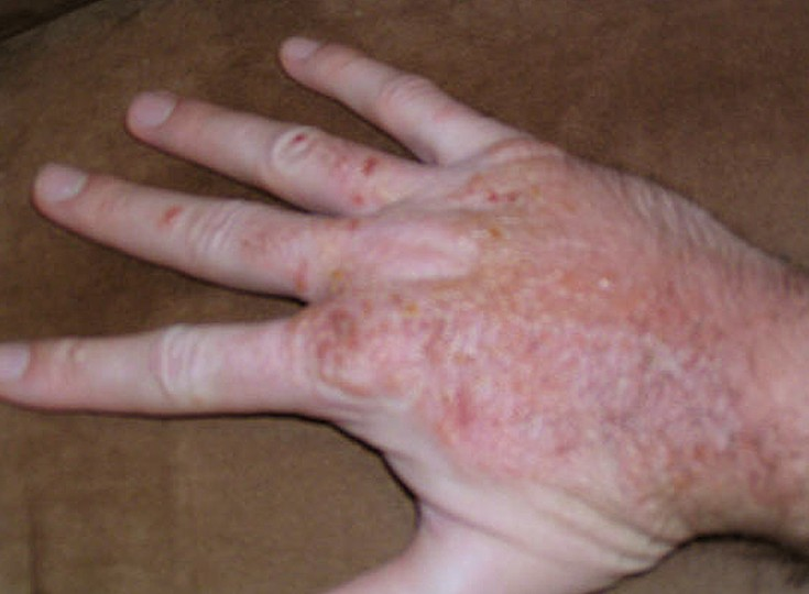blisters on hands pictures