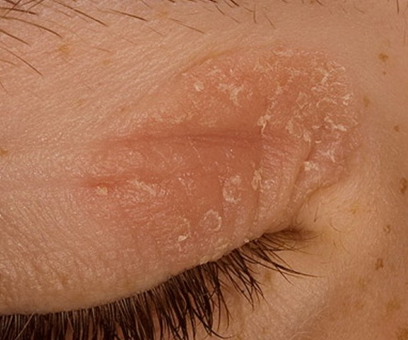 eczema on eyelid pictures 2