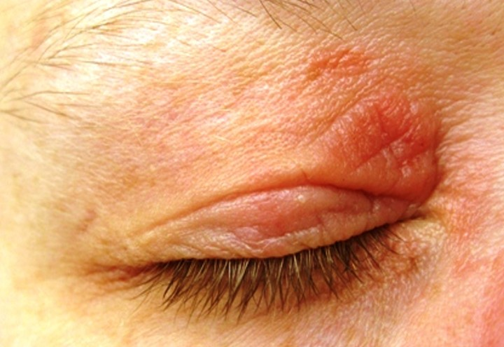 eczema on eyelid pictures