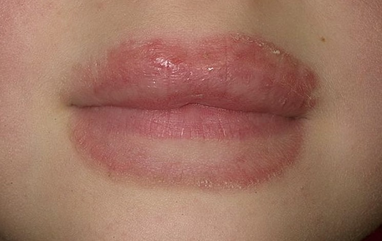 eczema on lips pictures 3