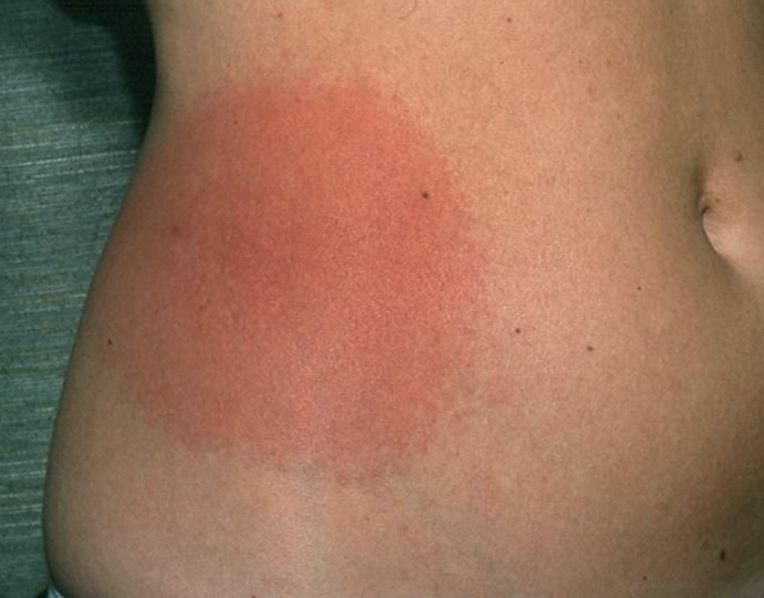 Erythema Migrans - Pictures, Symptoms, Causes, Treatment