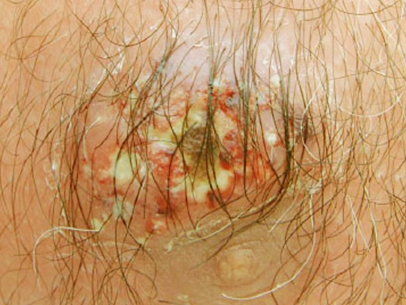 Furunculosis Pictures Definition Treatment Symptoms