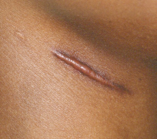 Hypertrophic Scar Treatment & Removal - What are the Scars?