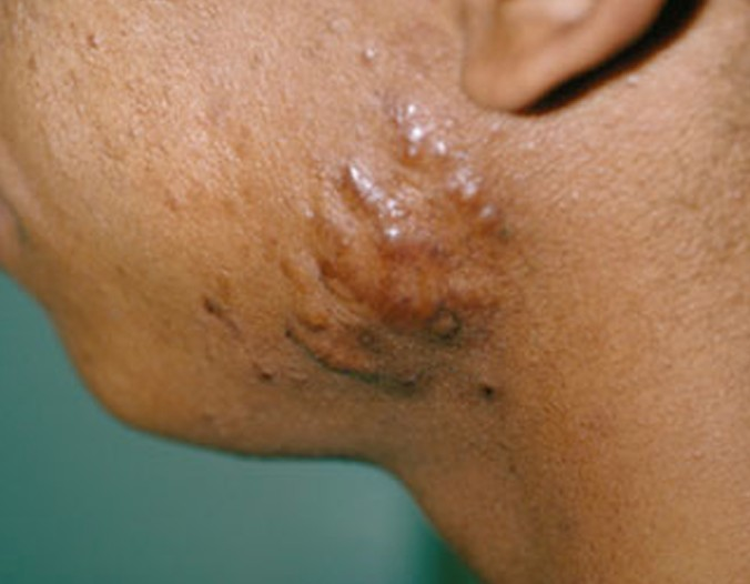 hypertrophic scar pictures 3
