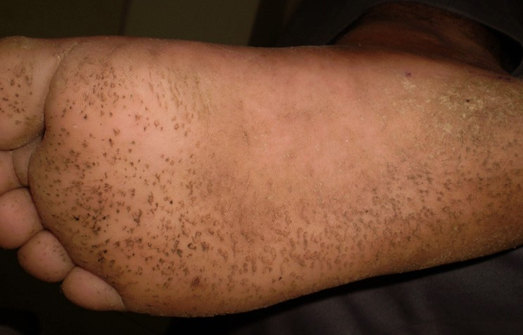 pitted keratolysis pictures 5
