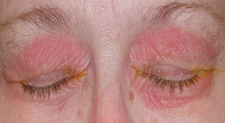 rash on eyelid pictures 2