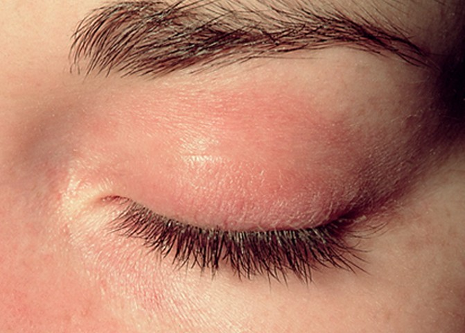 rash on eyelid pictures 3