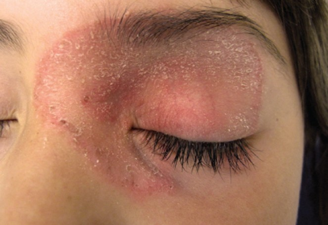 rash on eyelid