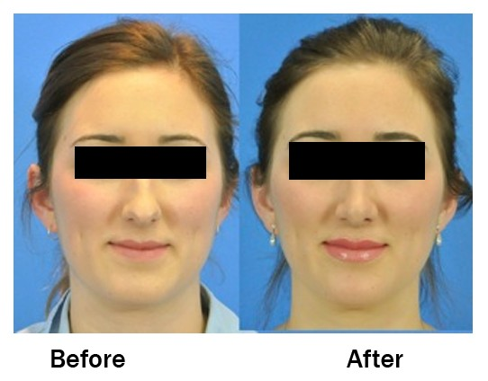 Septorhinoplasty - Procedure, Complications, Recovery time