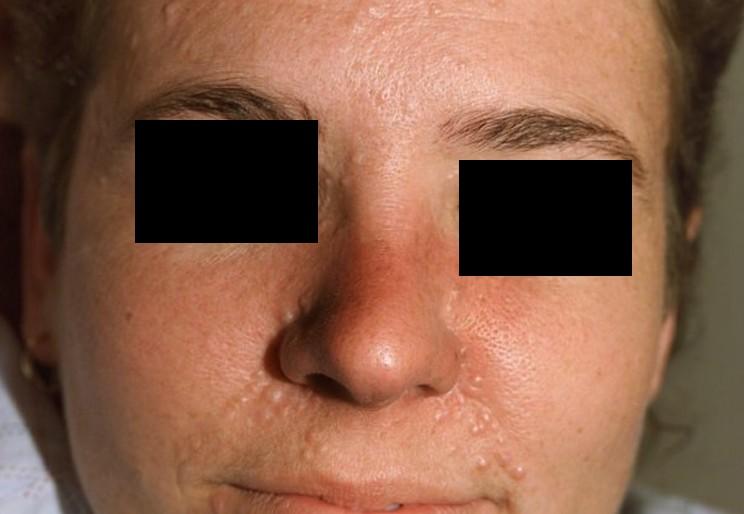 trichoepithelioma 2