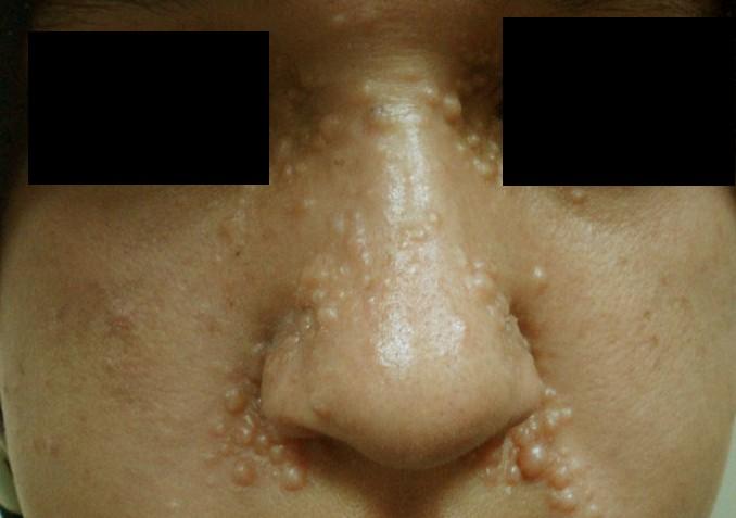 trichoepithelioma 3