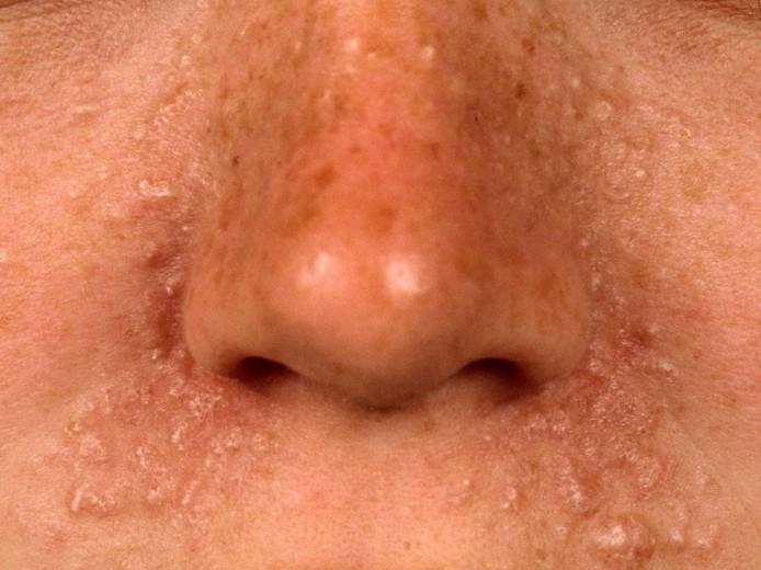 trichoepithelioma 4