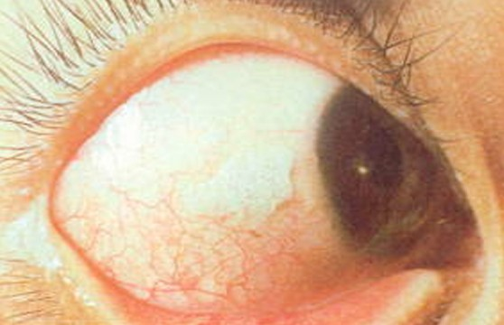 xerophthalmia pictures 2