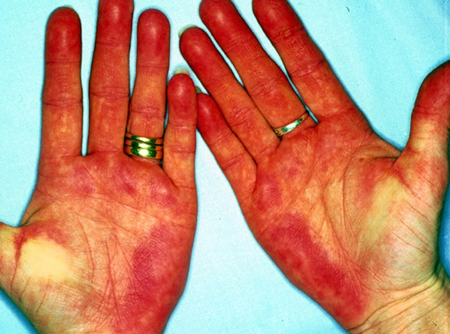 palmar erythema photos