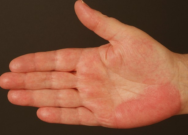 Itchy hands and feet at night? Find out the problem NOW ...