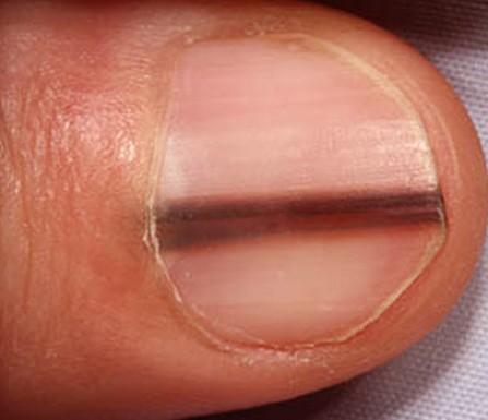subungual melanoma pictures 2