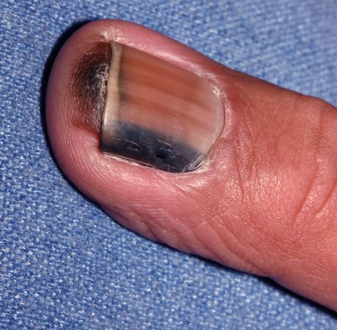 subungual melanoma pictures