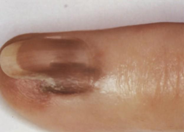 subungual melanoma